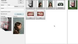 Movies: The software FACAD – Attach profile photo and match to ceph x-ray (7/9)