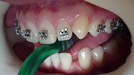 Movies: Bonding orthodontic bracket on the tooth 23 and applying archwire