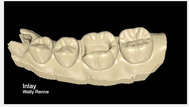 Movies: Posterior tooth preparations inlay, onlay, crownlay and crown