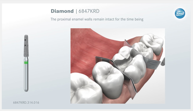 Movies: Preparation rules for ceramic inlays and partial crowns