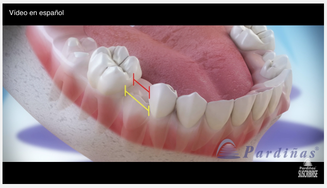 Movies: Baby teeth and use of space maintainers