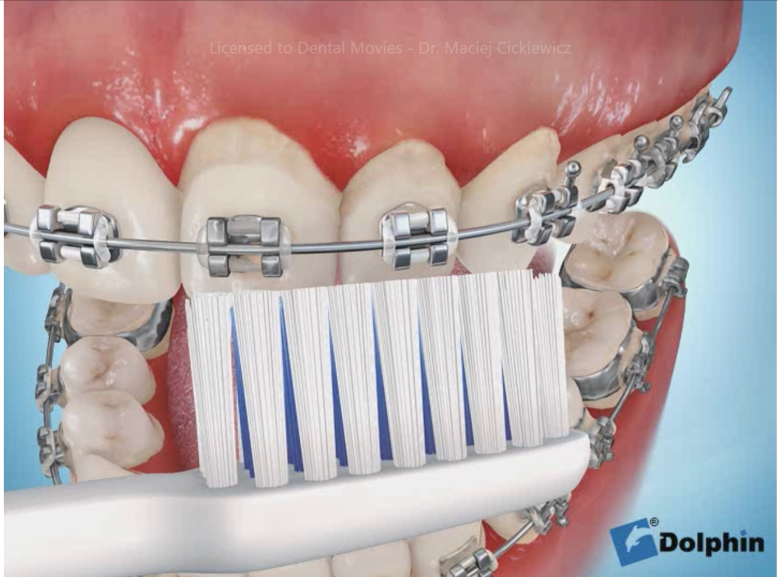 Movies: Brushing techniques – braces & poor hygiene