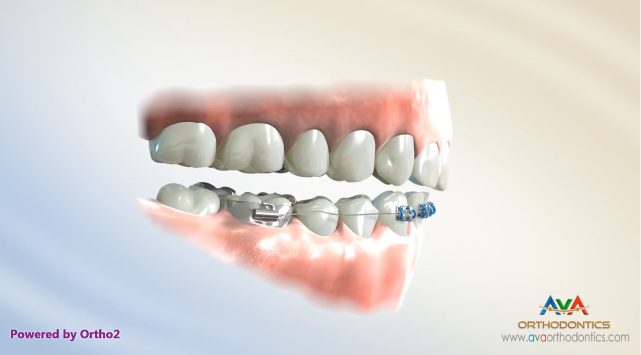 Movies: Deepbite Treatment by Cantilever Arch Wire – Orthodontic Treatment