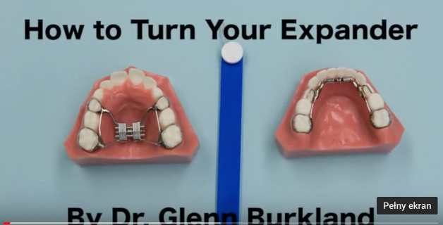 Movies: How to turn your expander