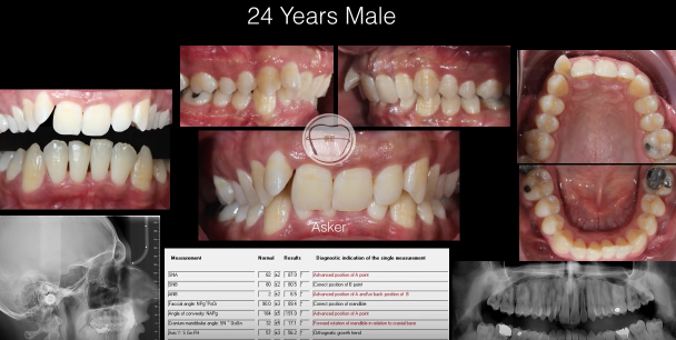 Movies: Orthodontic treatment of Class II division 2, Damon ,deep bite -anterior bite turbo by Dr. Amr Asker
