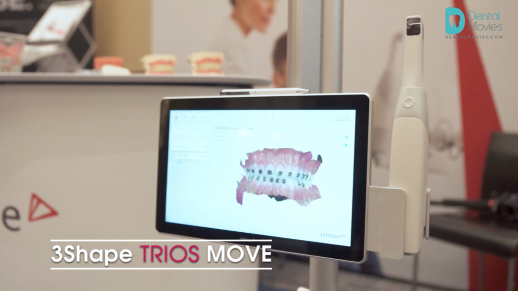 Movies: Review of the 3Shape Trios Move – new intraoral dental scanner