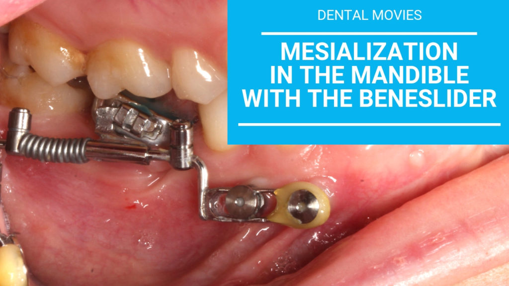 Movies: Mesialization in the mandible with the beneslider