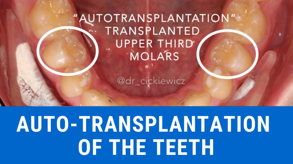 Movies: How to autotransplant the human teeth?