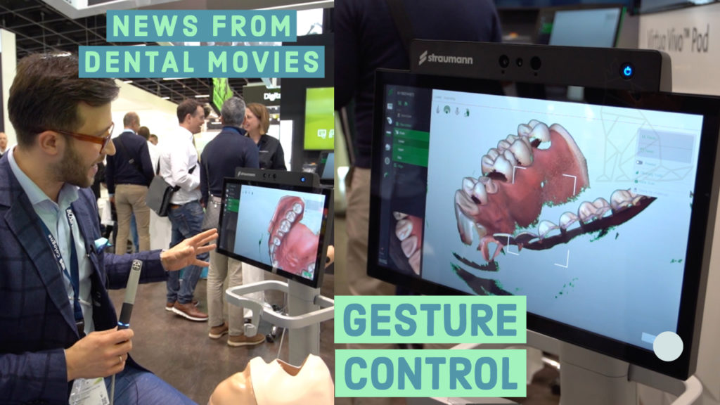 Movies: Intraoral scanner with GESTURE CONTROL