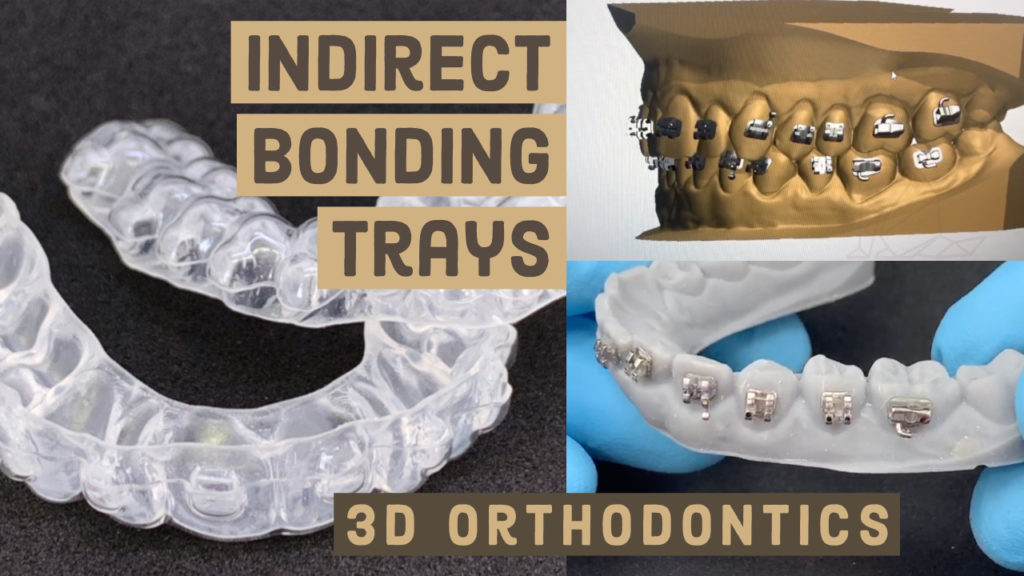 Movies: Indirect Bonding Trays – 3D ORTHODONTICS